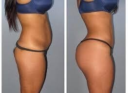 HIPS AND BUMS ENLARGEMENT +27605775963